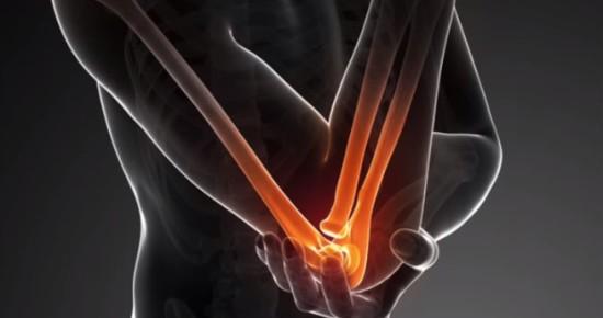 перелом головки лучевой кости локтя