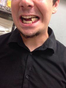 перелом нижней челюсти на фото