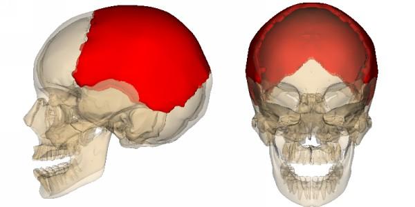 перелом теменной кости