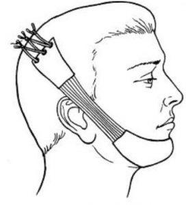 повязка при переломе челюсти
