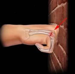 причины перелома пятой пястной кости - удар