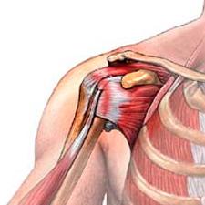 растяжение мышц плеча