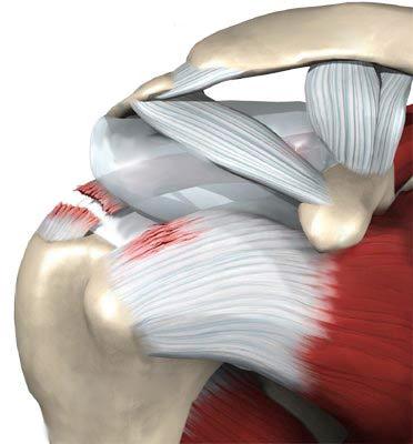 Изображение - Повреждение плечевого сустава лечение и сроки восстановления razryv-myshts-plecha