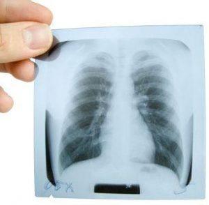 рентген легких для определения травмы