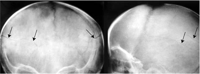 рентгенография теменной кости при переломе