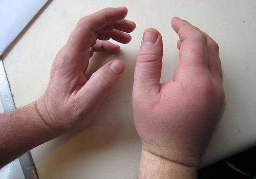сильный отек при ушибе кисти руки