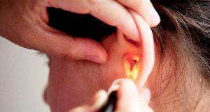 симптомы перелома уха