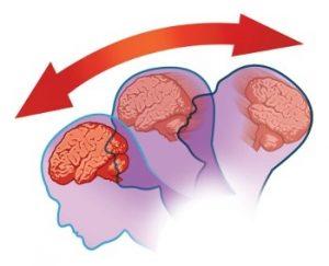 сотрясение мозгасотрясение мозга