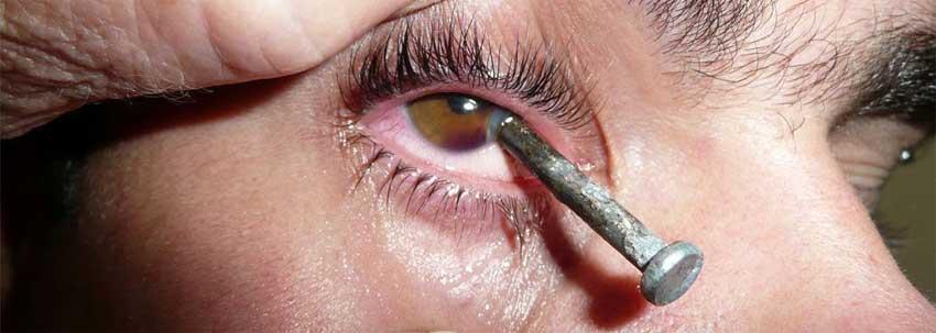 Травма глаза: лечение, классификация, последствия