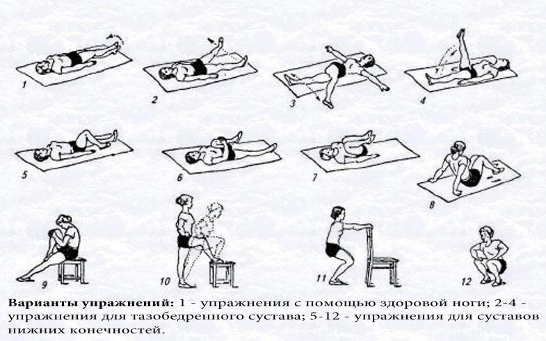варианты упражнений для реабилитации нижних конечностей