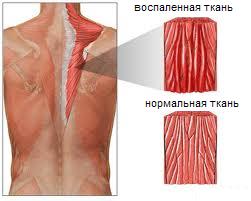Изображение - Повреждение плечевого сустава лечение и сроки восстановления vospalenie-myshts