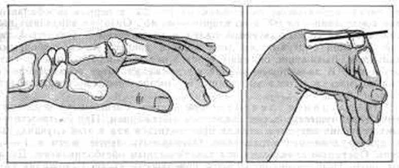 закрытый остеосинтез спицей