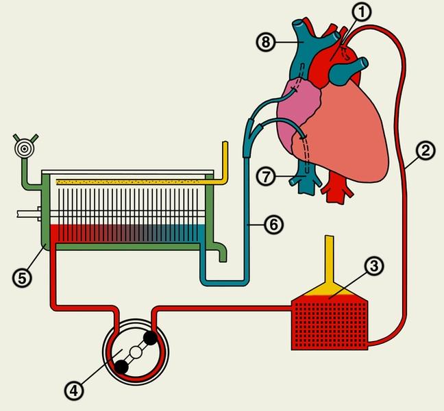 аппарат искусственного сердца