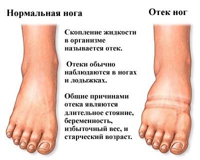 Как снять отек после перелома ноги