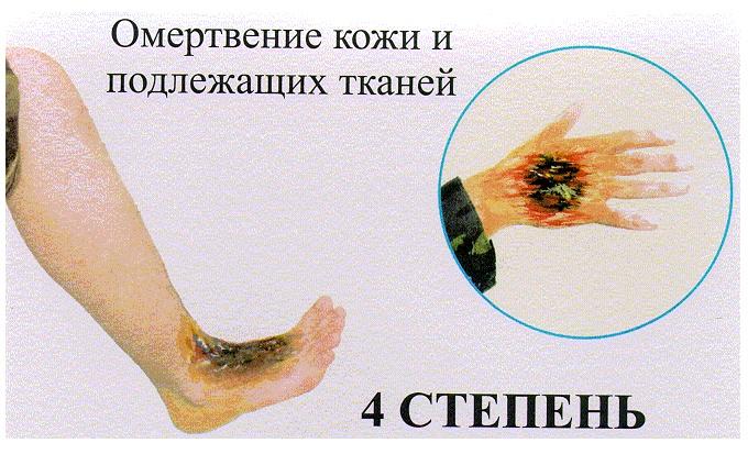 Ожог 4 степени (фото): первая помощь и последствия