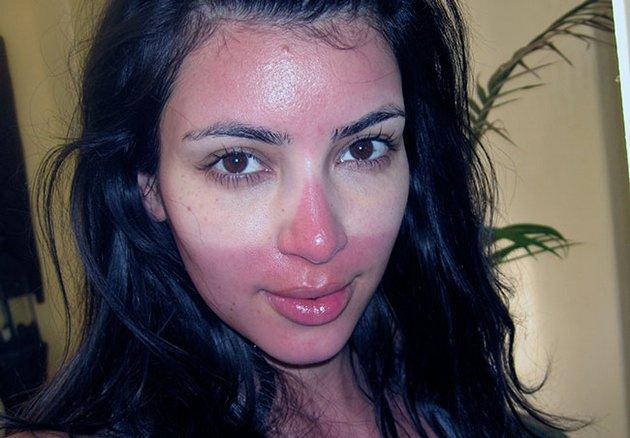 ожог на лице