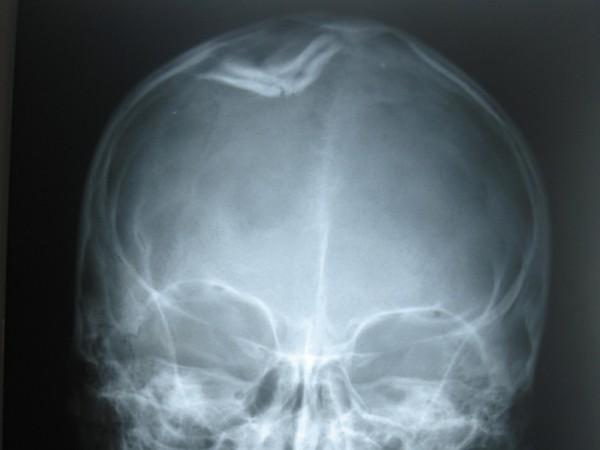 перелом черепа рентген