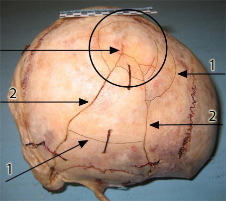Перелом черепа: первая помощь, последствия