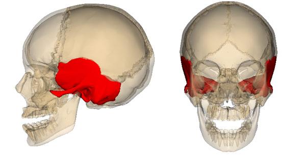 перелом височной кости