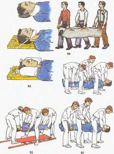 первая помощь при травме спинного мозга
