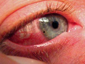 поверхностная травма глаза