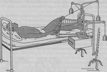 скелетное натяжение при переломе ноги