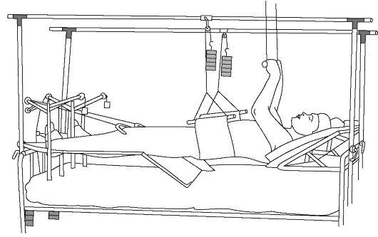 скелетное вытяжение при переломе таза