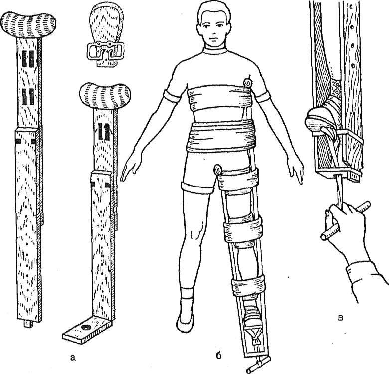 Как проводится иммобилизация при переломе бедра
