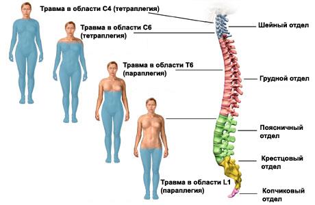 травмы спинного мозга по сегментам