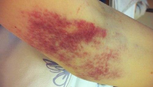 Ушиб локтя (при падении): лечение, снятие опухоли