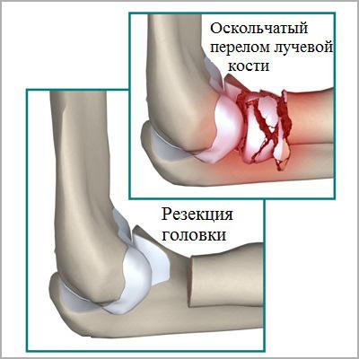 резекция головки при оскольчатом переломе