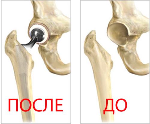Операции по замене сустава при переломе шейки бедра какие процедуры при артрозе коленного сустава