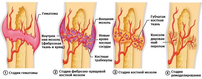 фомирование костного мозоля