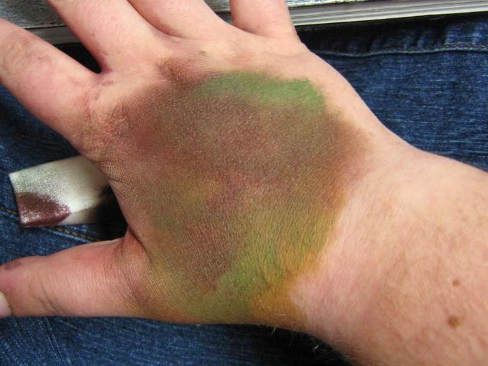 химический ожог кожи