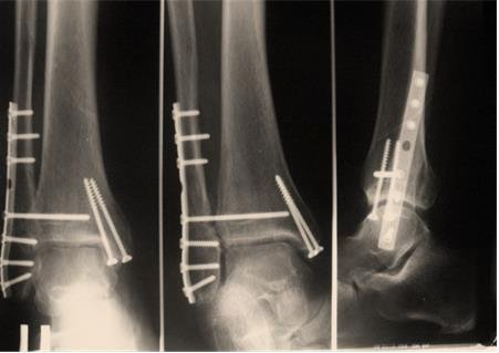операция с пластиной при сломанной ноге