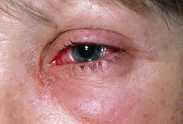 ожог глаза при ожоге
