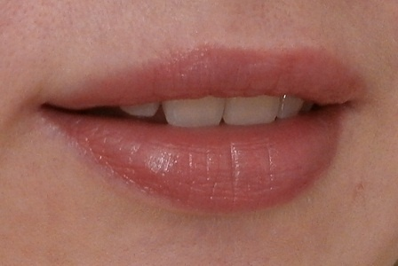 ожог губы