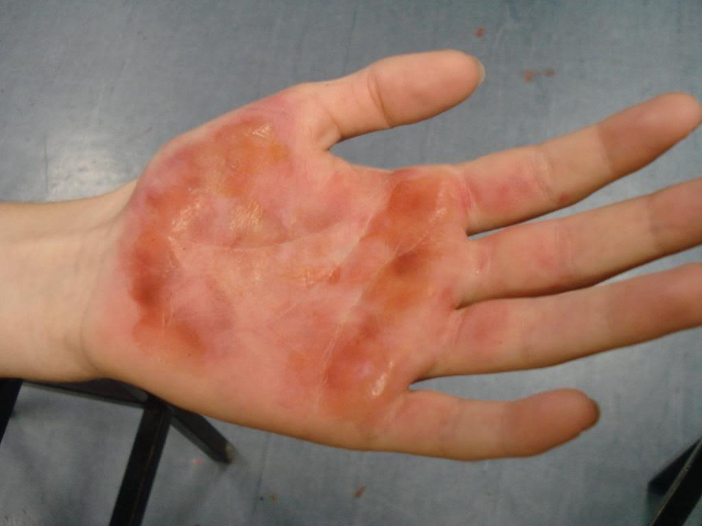 Ожог горячим растительным маслом : чем лечить и что делать, первая помощь 95