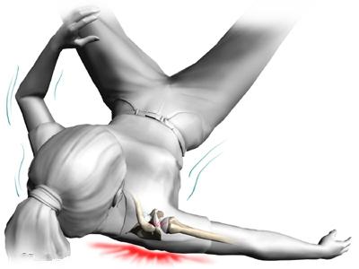 падение и перелом плеча