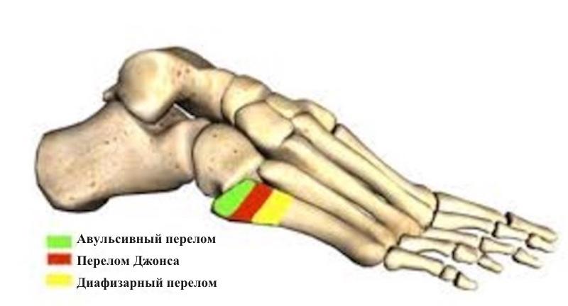 перелом плюсневой кости массаж