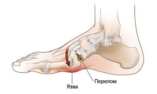 перелом кости стопы