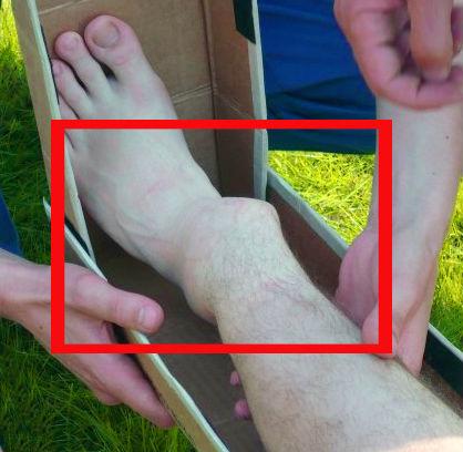 перелом ноги со смещением