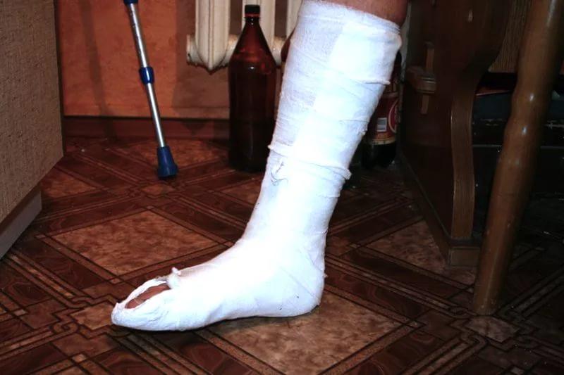 Перелом ноги (открытый и закрытый): признаки, сколько ходить в гипсе