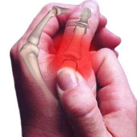 перелом пальца на руке