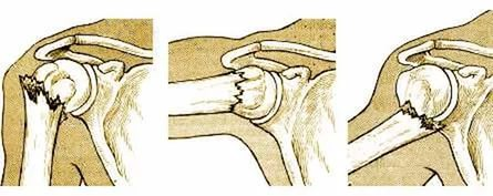 Как разработать плечевой сустав после перелома
