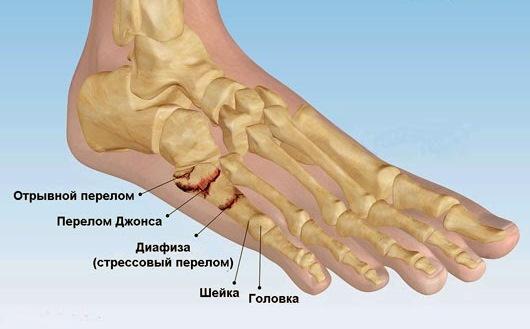 Перелом плюсневой кости стопы: сколько ходить в гипсе, реабилитация