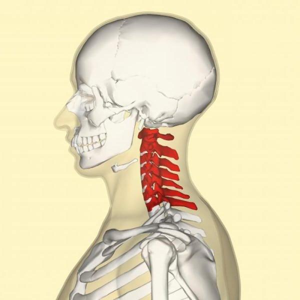 перелом шейного позвонка