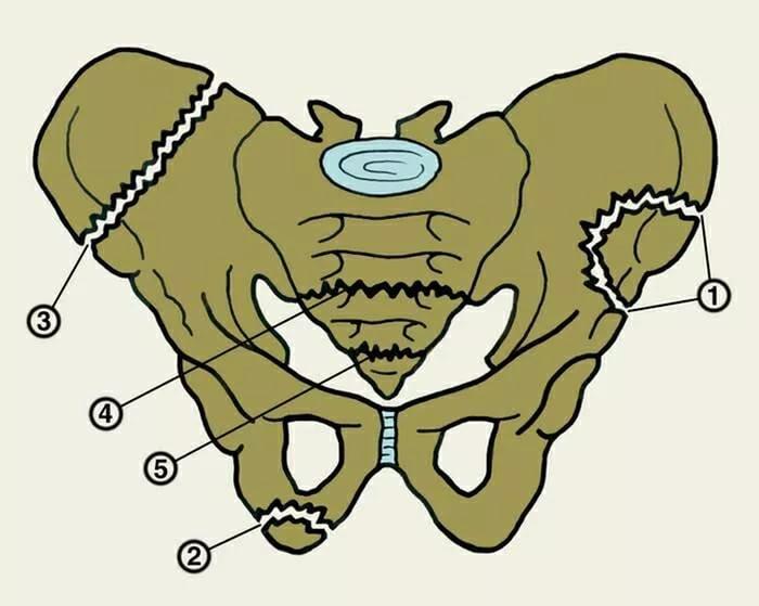 переломы костей таза