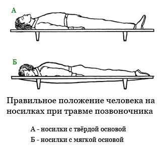первая помощь при ушибе спины