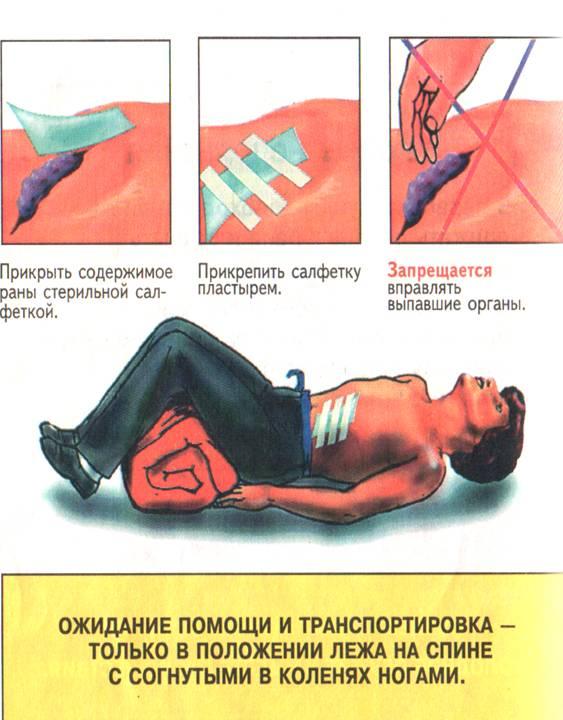 помощь при открытой травме живота